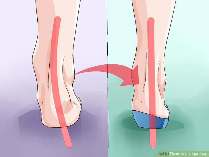 Dress Shoe Insoles For Flat Feet