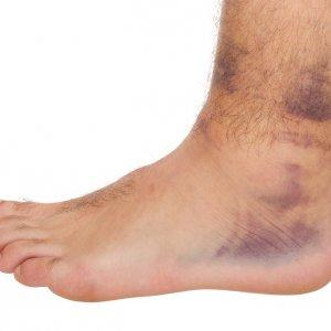 Trail-Running-hazards-Ankle-Sprain