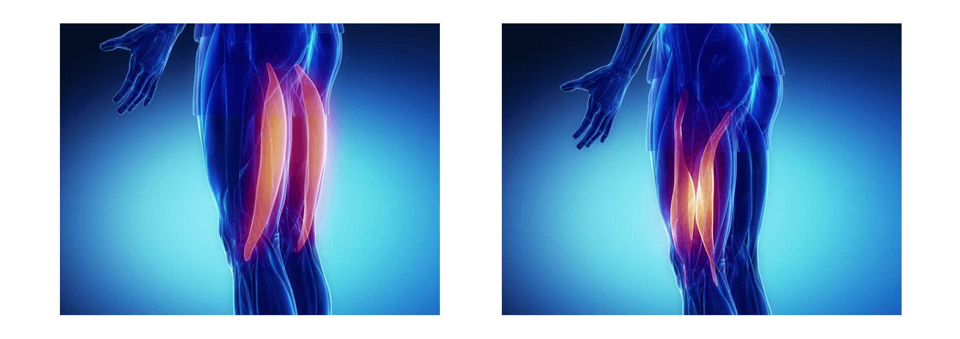 Sports-injury-concept-muscle-tissue