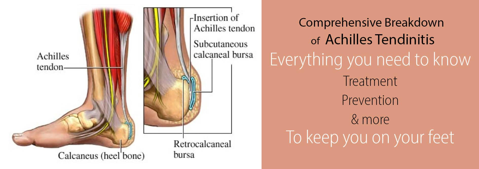 Achilles tendon rupture physical therapy - Achilles Tendinitis