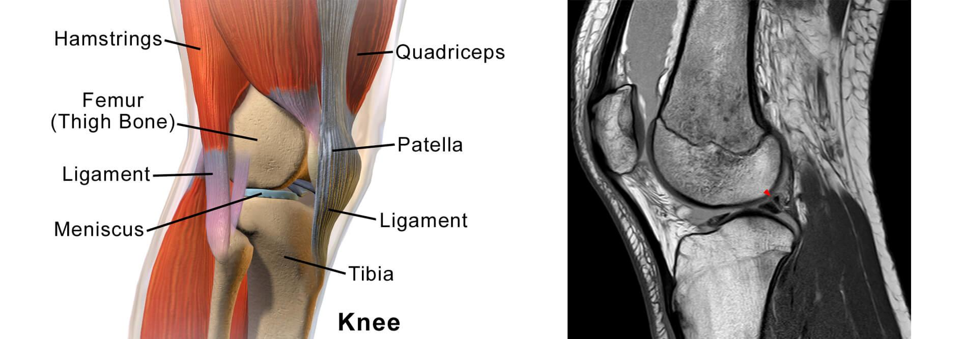 Patellofemoral Pain Syndrome - Runner's Knee - Causes ...