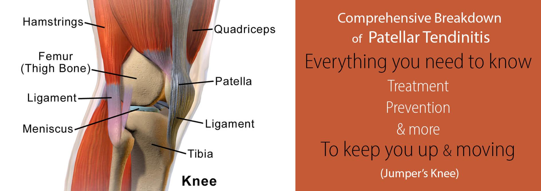 Patellar-tendinitis-everything-you-need-to-know