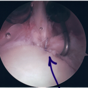 Runner's Guide to Labral Tear