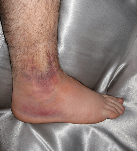 Symptoms Of A Sprained Ankle