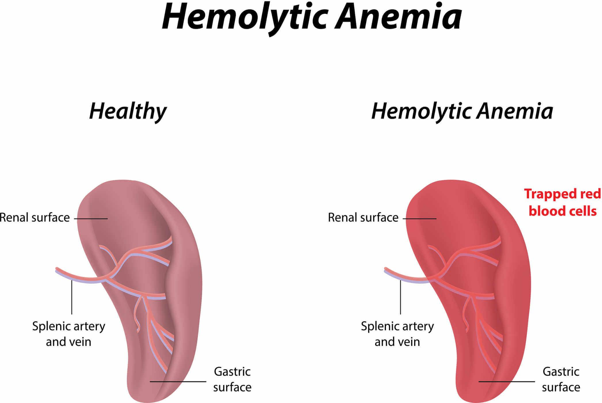 hemolytic anemia from footstrikes - the full runner's injury guide, Skeleton