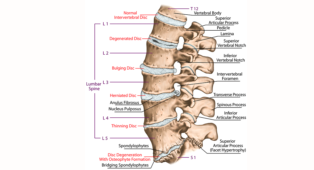 Herniated Disc Runners Guide To Diagnosis Treatment Prevention