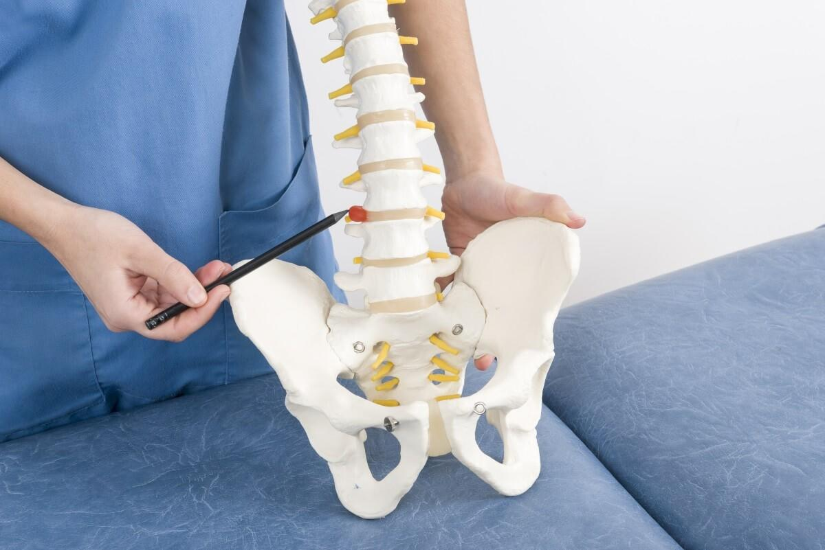 Lumbar Lordosis A Guide On Treatment Prevention Amp Diagnosis