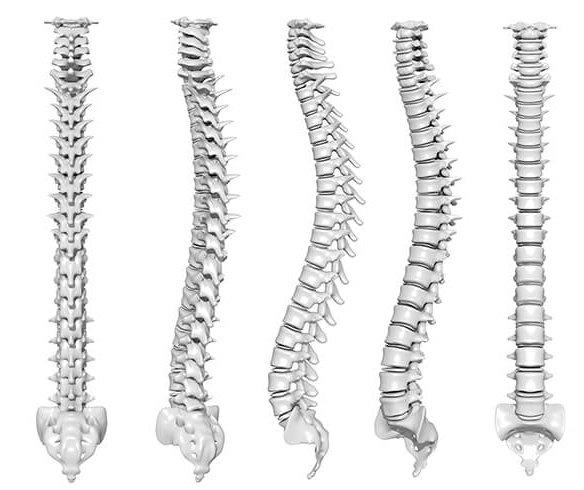Lumbar-Lordosis-normal-spine-curvature