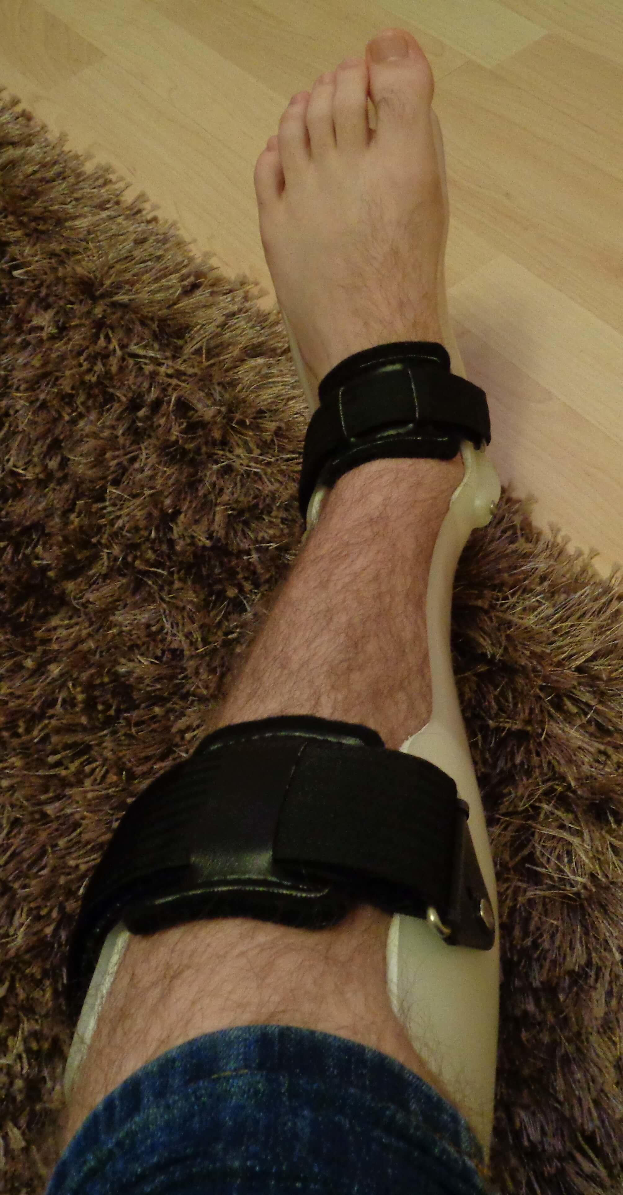 Runners-Guide-Stress-Fracture-cast-orthotic-brace
