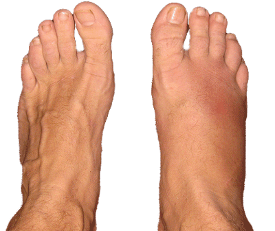 Stress Fractures A Runner S Approach To Diagnosis Treatment Prevention Runnerclick