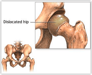 dislocated-hip-runners-guide-to-hip-dislocation