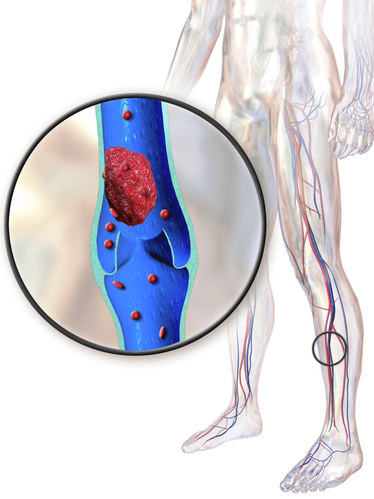 Deep Vein Thrombosis (DVT) - How to Diagnose, Treat & Prevent it