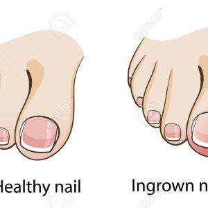Runner\'s Simple and Painful Ingrown Toenail | RunnerClick