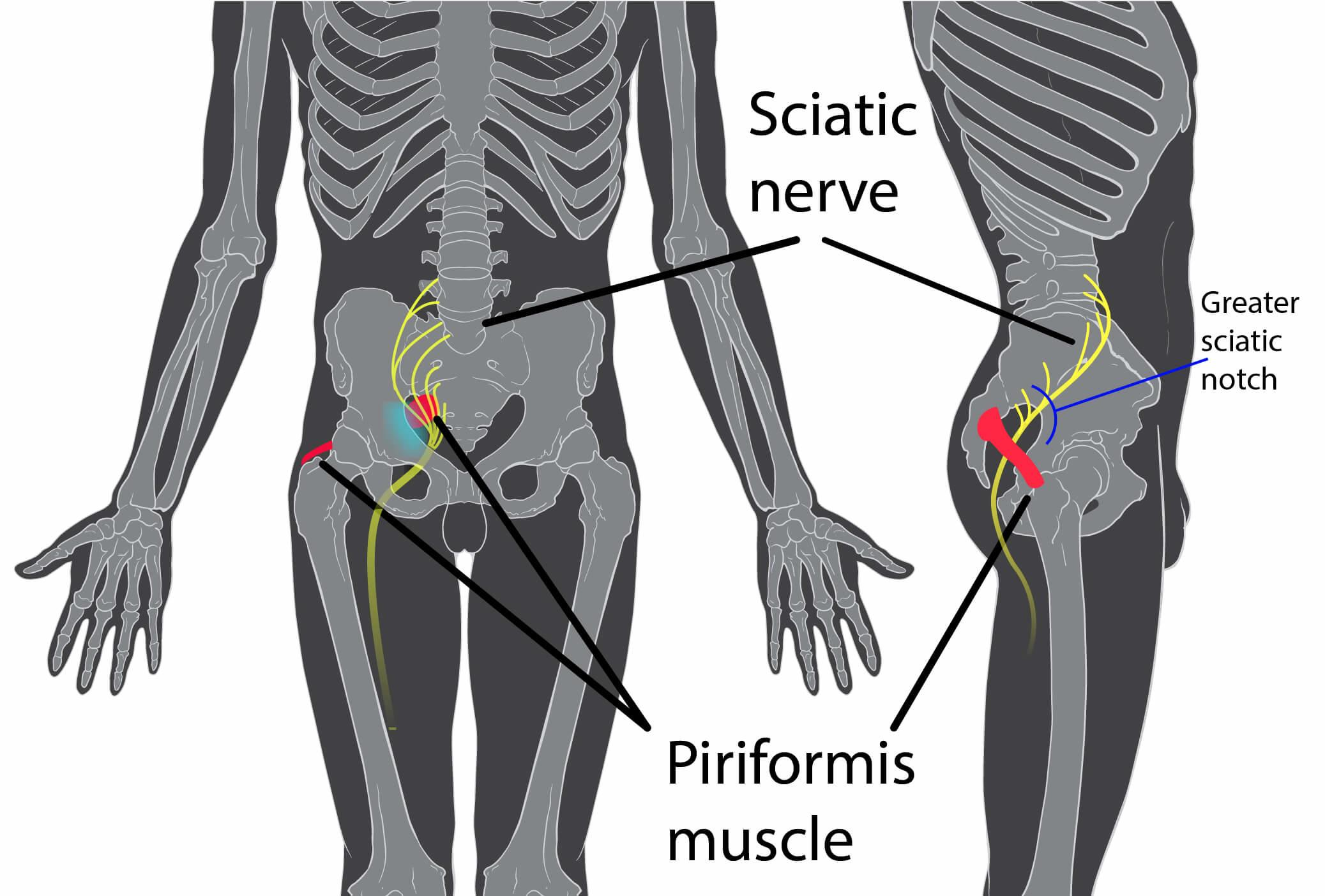 Piriformis from the runners angle signs symptoms prevention piriformis syndrome sciatic nerve publicscrutiny Images