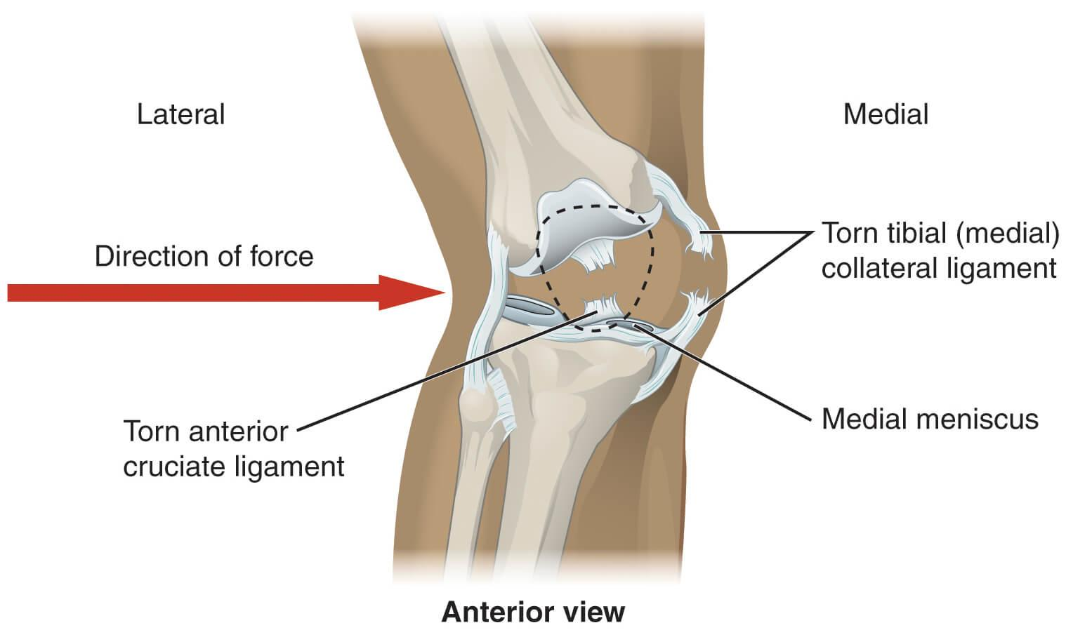 Mcl runners sprain defined causes treatment and prevention pooptronica Gallery