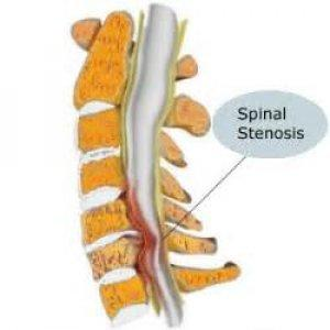 Spinal Stenosis - All you need to Know | RunnerClick