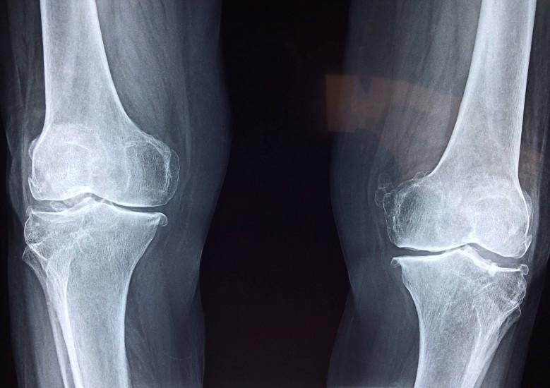 Running After Total Joint Replacement