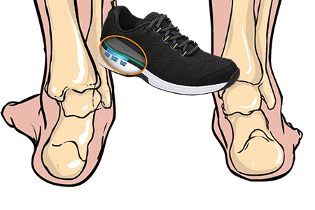 supination shoes