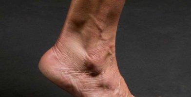 An in depth and comprehensive Runner's Guide Sprained Ankle