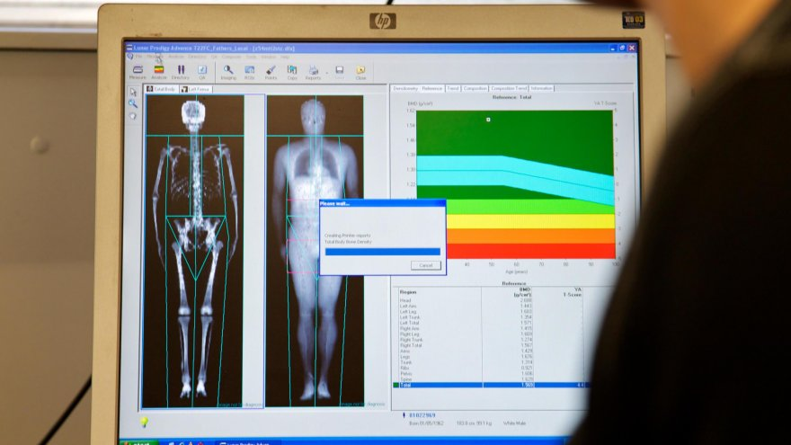 Importance of DXA Scans for Runners