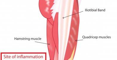 An in depth injury article for runners on IT Band Syndrome