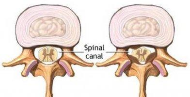 spinal stenosis causes,symptoms,treatment