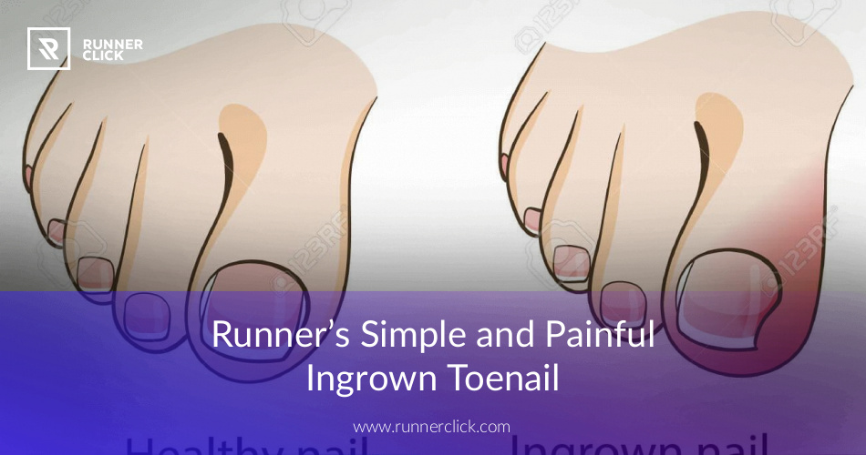 Ingrown Toenail and Runners Causes, Treatment and Prevention