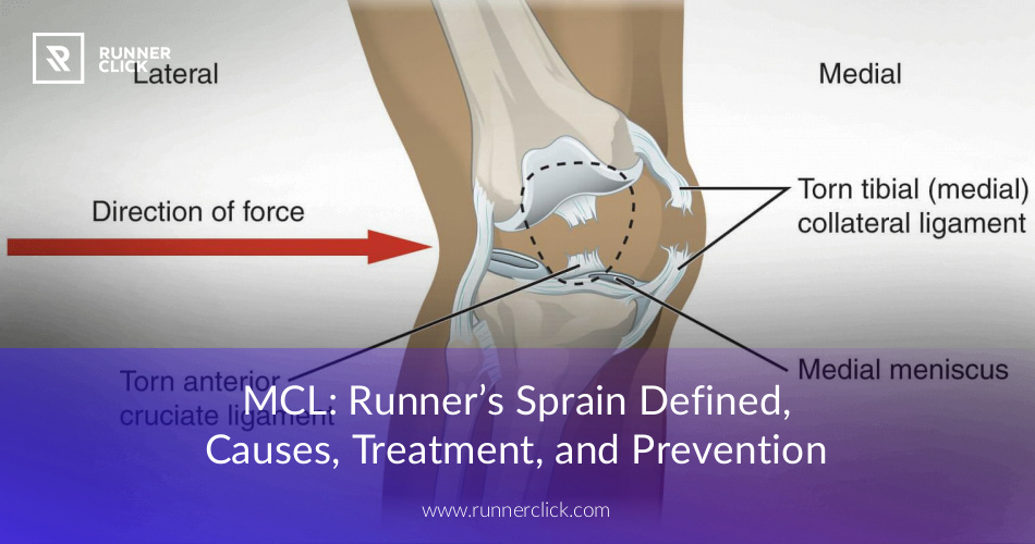 MCL: Runner\'s Sprain Defined, Causes, Treatment, and Prevention